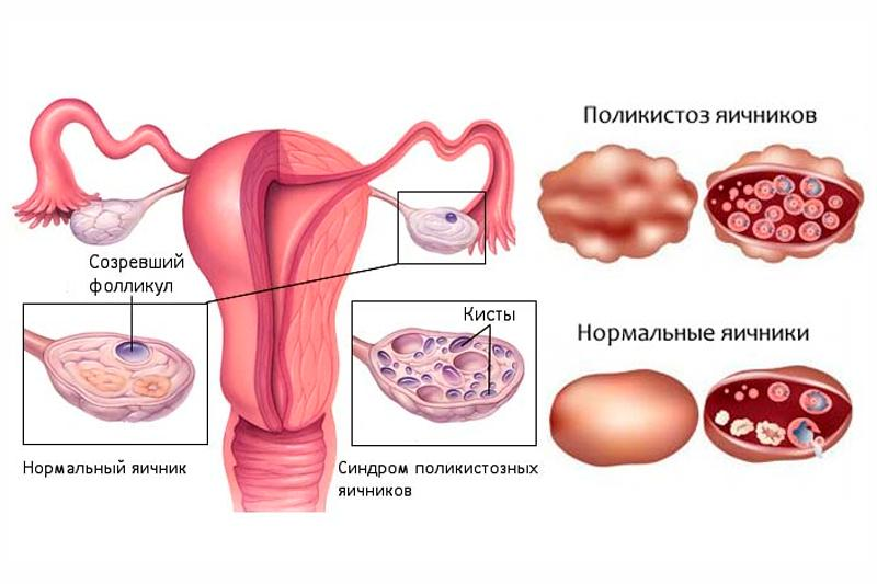 гормональные прыщи у женщин фото