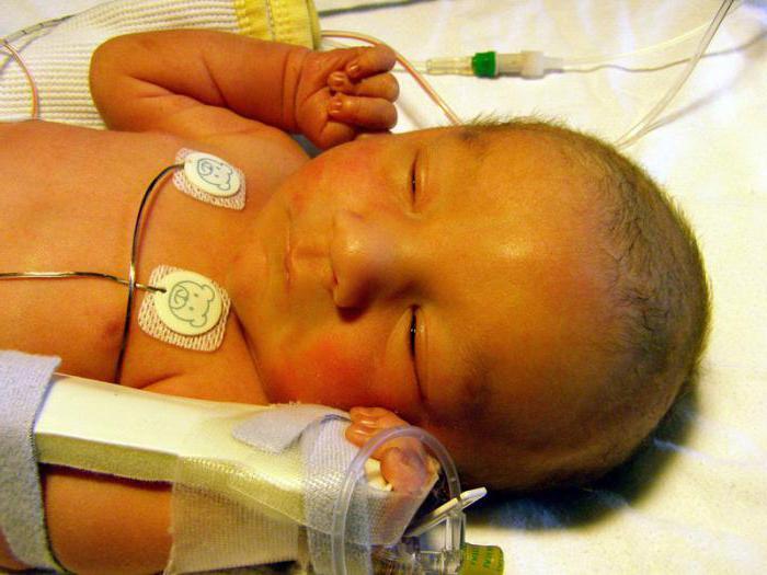 Анализ крови на билирубин у новорожденных