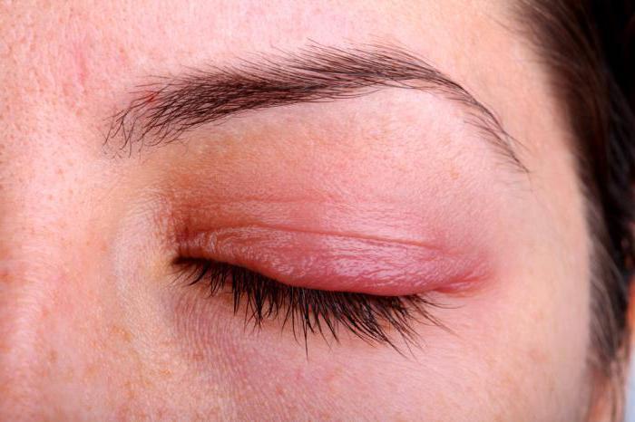 Если глаза красные и воспалены чем лечить