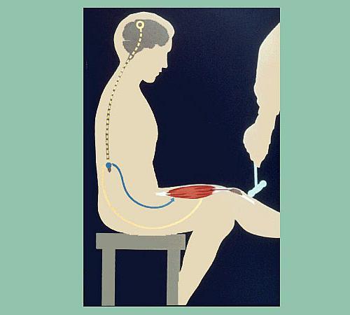 этапы прохождение нервных импульсов при коленном рефлексе