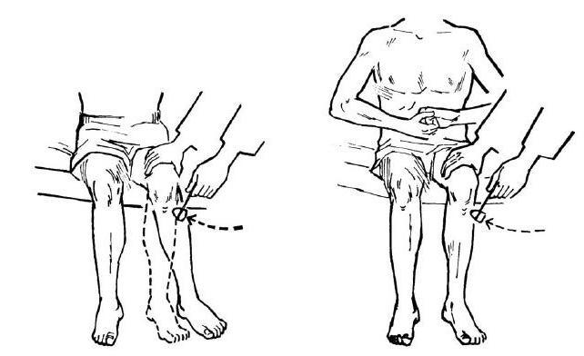 дуга коленного рефлекса