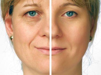Безоперационный лифтинг лица - наиболее популярная процедура омоложения кожи.