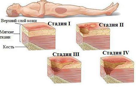 Хроническая цитомегаловирусная инфекция у ребенка лечение
