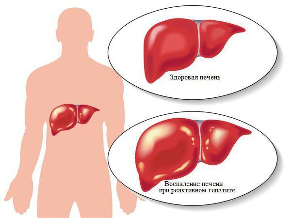 Реактивный гепатит: симптомы и лечение