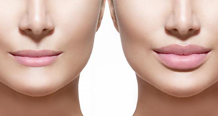 Приспособления для увеличения губ