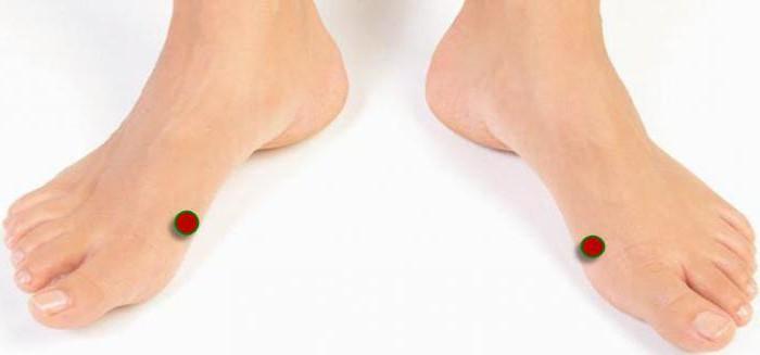 Как вылечит ноги индюшат