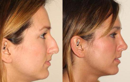 Сколько стоит операция по уменьшению носа омск