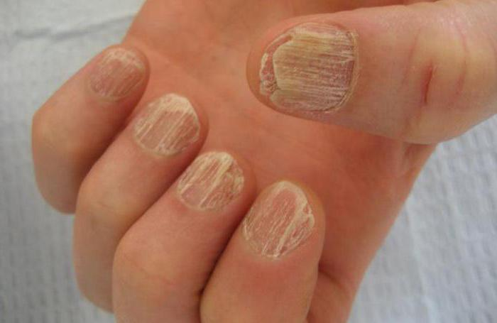 дистрофия ногтевой пластины