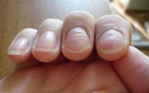 волнистые ногти