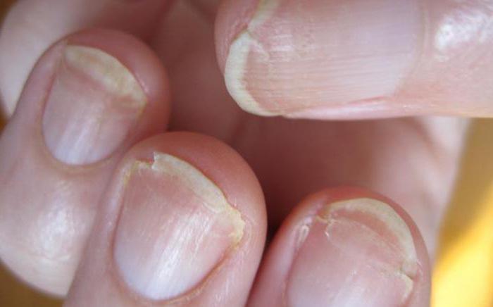 дистрофия ногтя лечение
