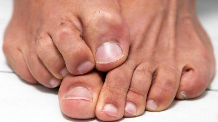 дистрофия ногтей на ногах