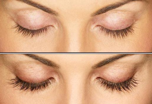 после наращивания ресниц красные глаза что делать и как проходит процедура