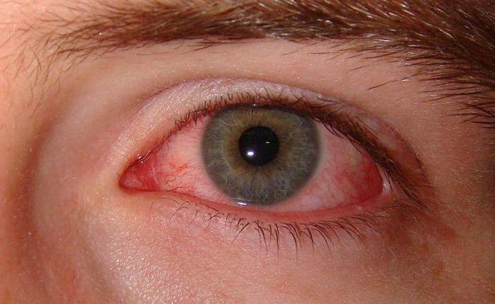 после наращивания ресниц красные глаза что делать капли