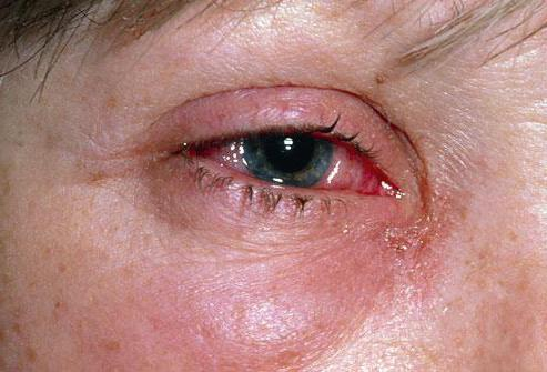 после наращивания ресниц красные глаза что делать причины