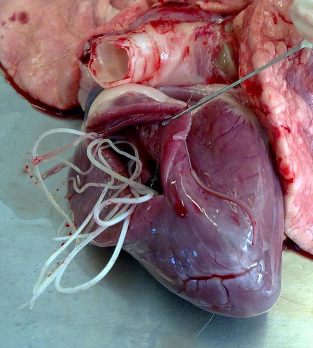 паразиты кровеносной системе человека