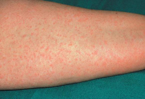 причина аллергии на сладкое у взрослых