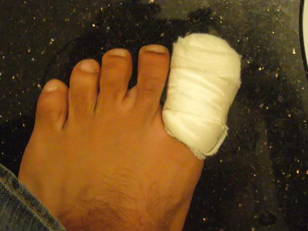 Микоз ногтей на ногах 19