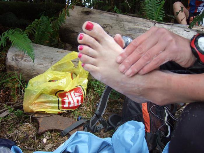 чем мазать болячки на ногах