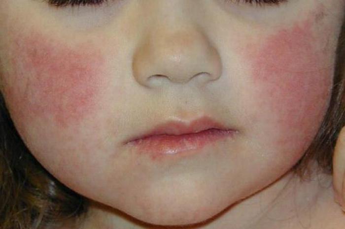 аллергия на жару фото