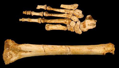 К чему снятся человеческие кости?