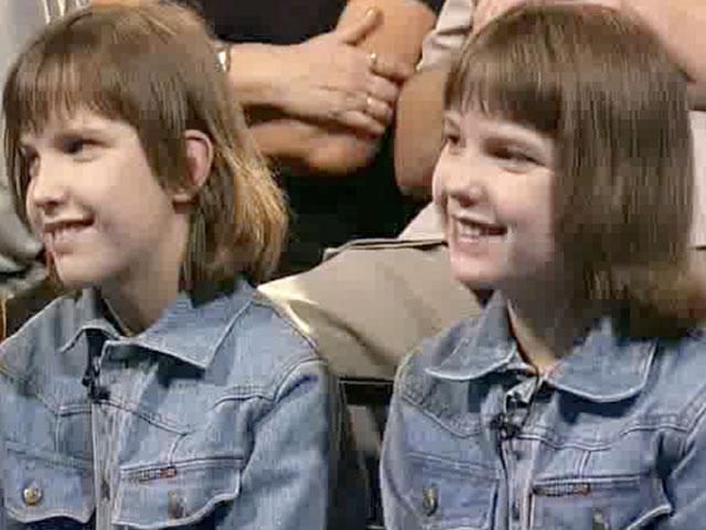 Сиамские близнецы в россии аня и таня