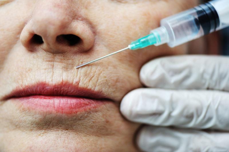 Ботокс: побочные эффекты, возможные осложнения, противопоказания, отзывы
