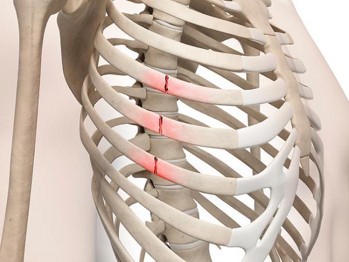 Первая помощь при переломах ребра. Как отличить ушиб от перелома