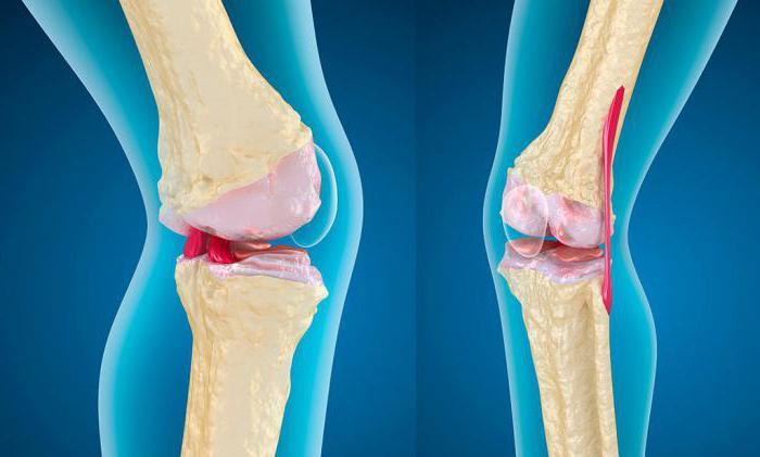 Упражнения для коленных суставов для пожилых людей 79