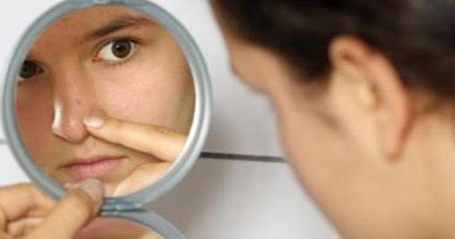 Можно ли выдавливать черные точки на носу