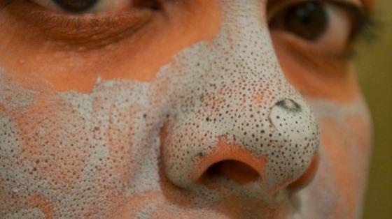 угольная маска против черных точек