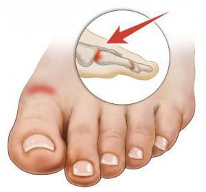 Артрит стопы ног: лечение и причины появления