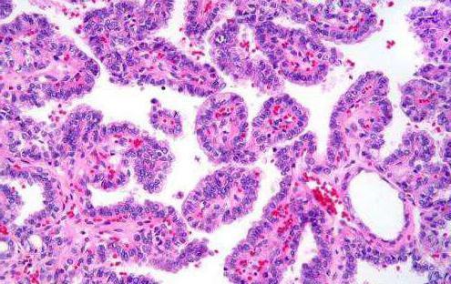 Карцинома папиллярная щитовидной железы: причины, симптомы, стадии и особенности лечения