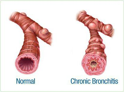 Заболевания трахеи и бронхов