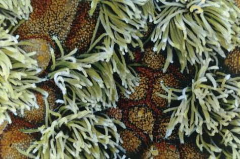 Слизистые гортани трахеи бронхов