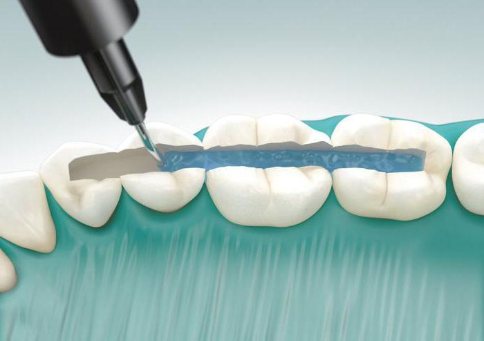 Шинирование зубов при пародонтите фото