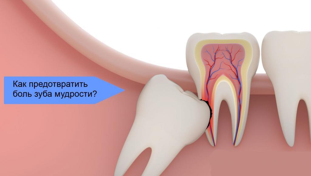 Проблемный зуб