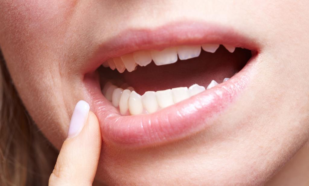 Удаление зуба мудрости при беременности