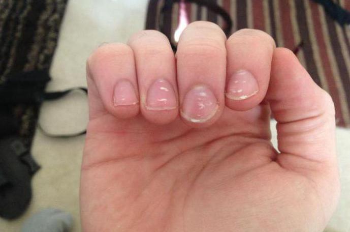 Что делать если покраснели ногти