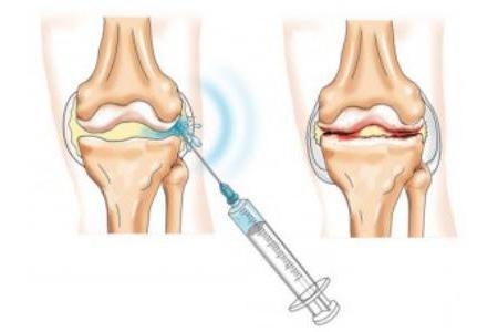 Симптомы артрита и артроза