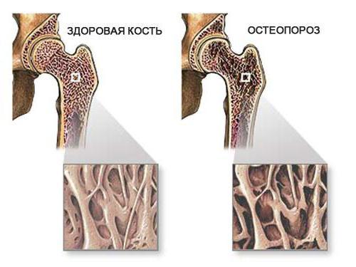 Диффузный остеопороз: признаки и лечение