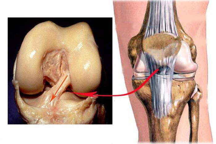 воспаление связок коленного сустава