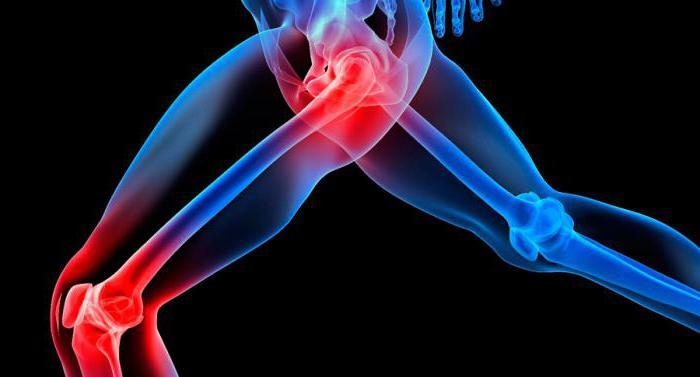 ревматоидный артрит серонегативный