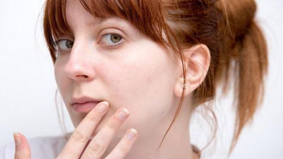 почему появляется герпес на губах