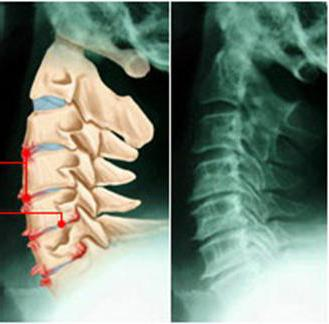Гимнастика при остеохондрозе позвоночника