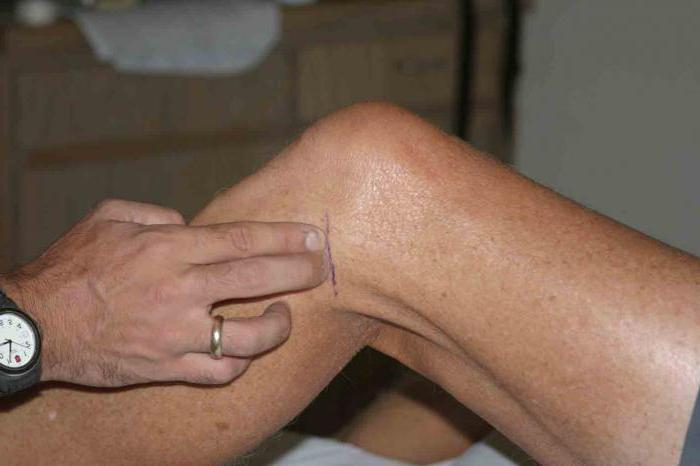 Почему болит колено сбоку с внутренней стороны Что делать