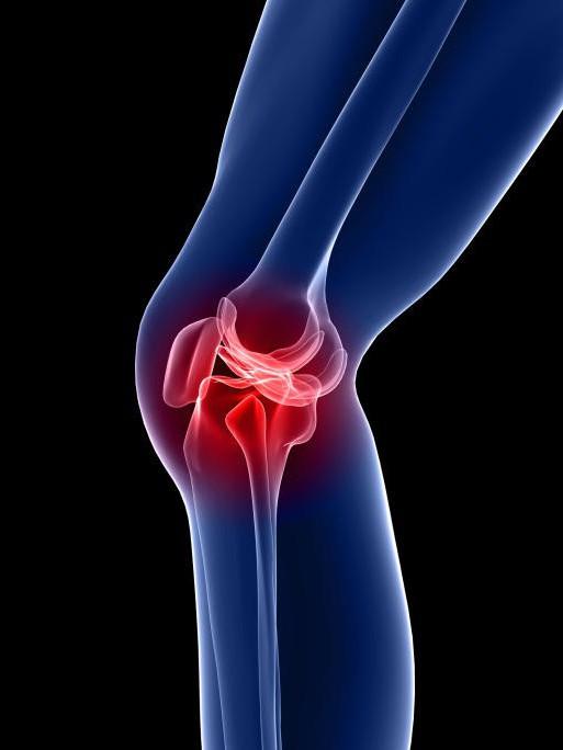 Причины и лечение боли в коленном суставе при ходьбе