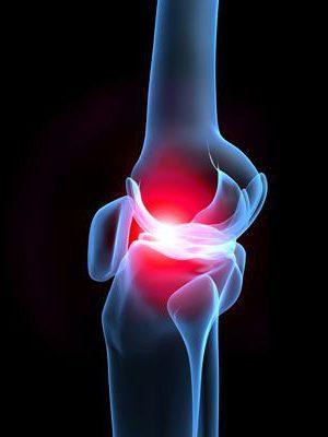 Спереди ниже колена болит кость