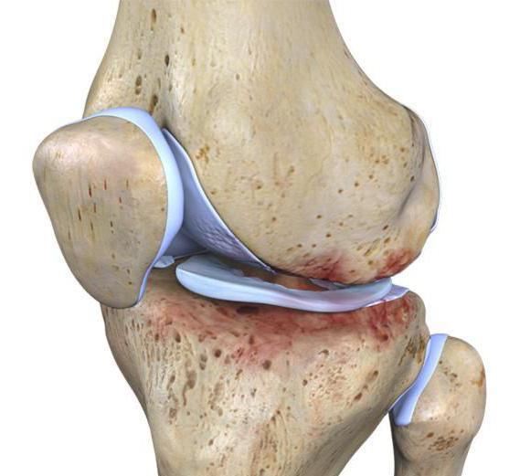 почему болит колено сбоку с внешней стороны