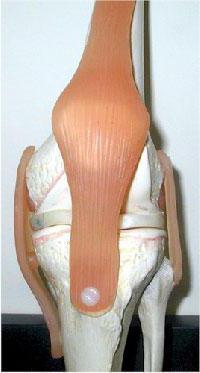 болит колено сбоку с внешней стороны