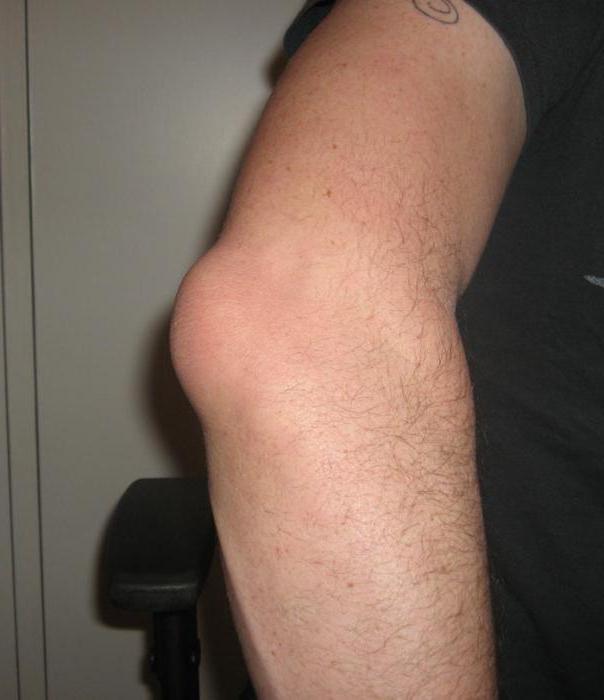 болят суставы колен и локтей